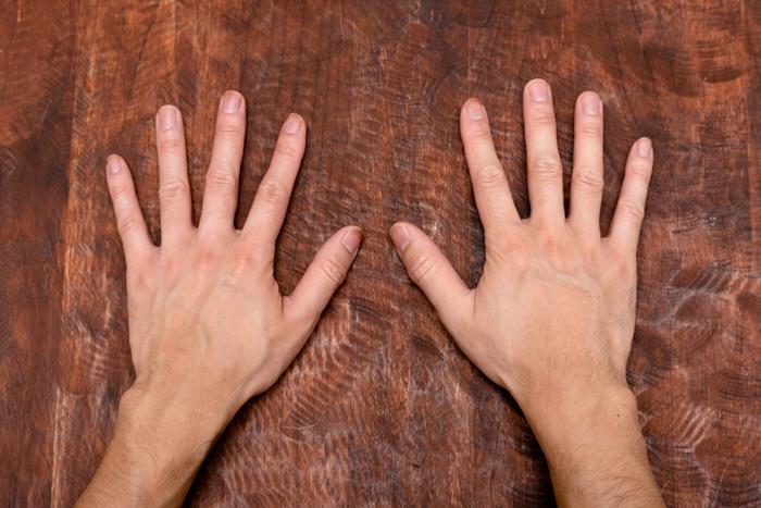 手荒れのない手の写真