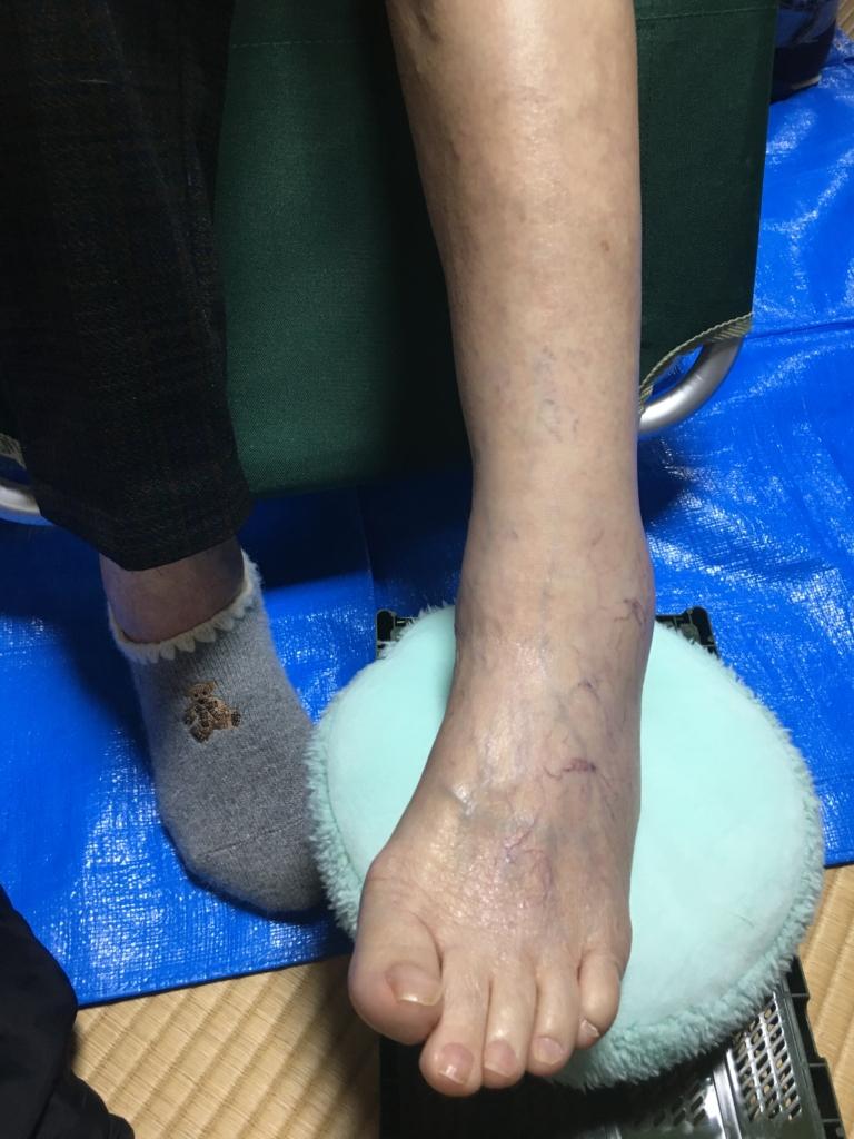 リラクゼーションケア後の左足の写真
