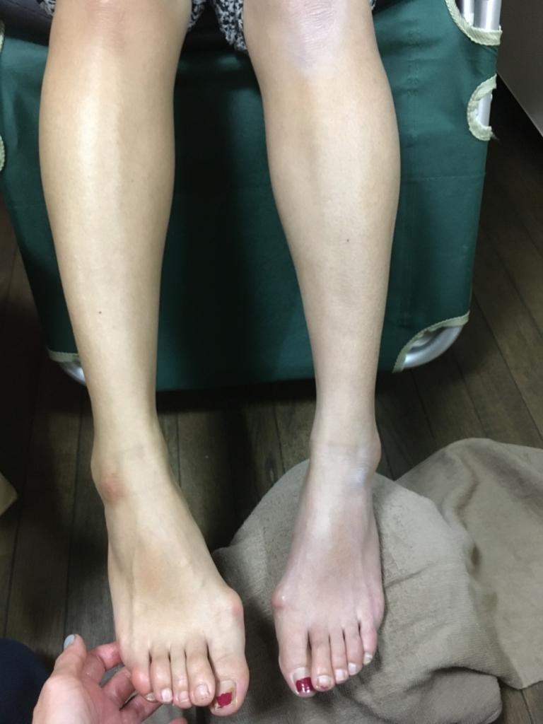 ママさんの右足の施術後