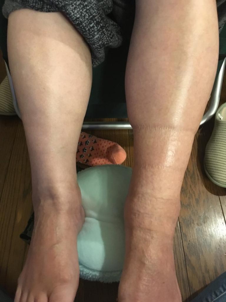 右足を施術後の写真