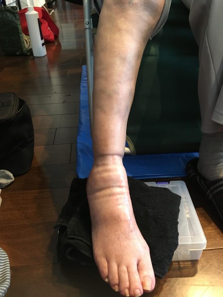 右足を施術前の写真